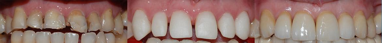 corone in zirconio, denti, protesi, disilicato, poliedro, centro dentistico, Piacenza.