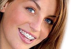 ortodonzia, apparecchio invisibile, adulti, bambini, invisalign, apparecchio fisso, mobile, poliedro, Piacenza