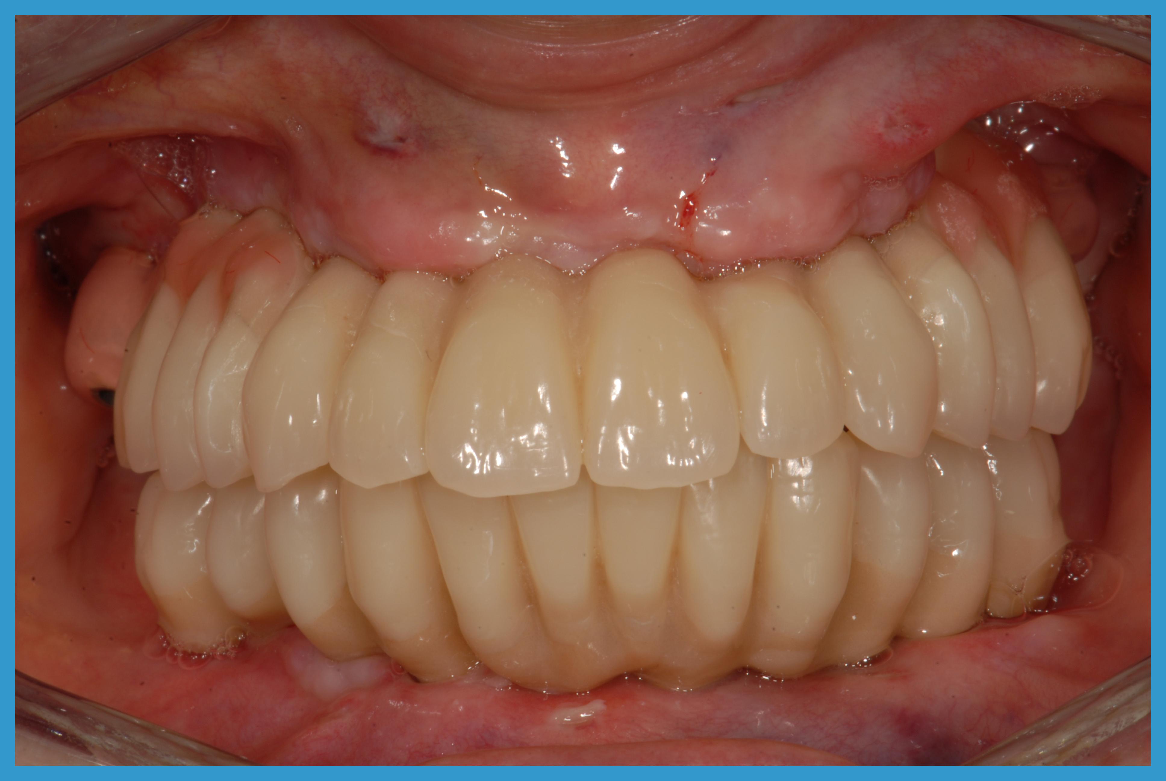 7 riabilitazioni  alloggiate nel cavo orale subito dopo l'intervento