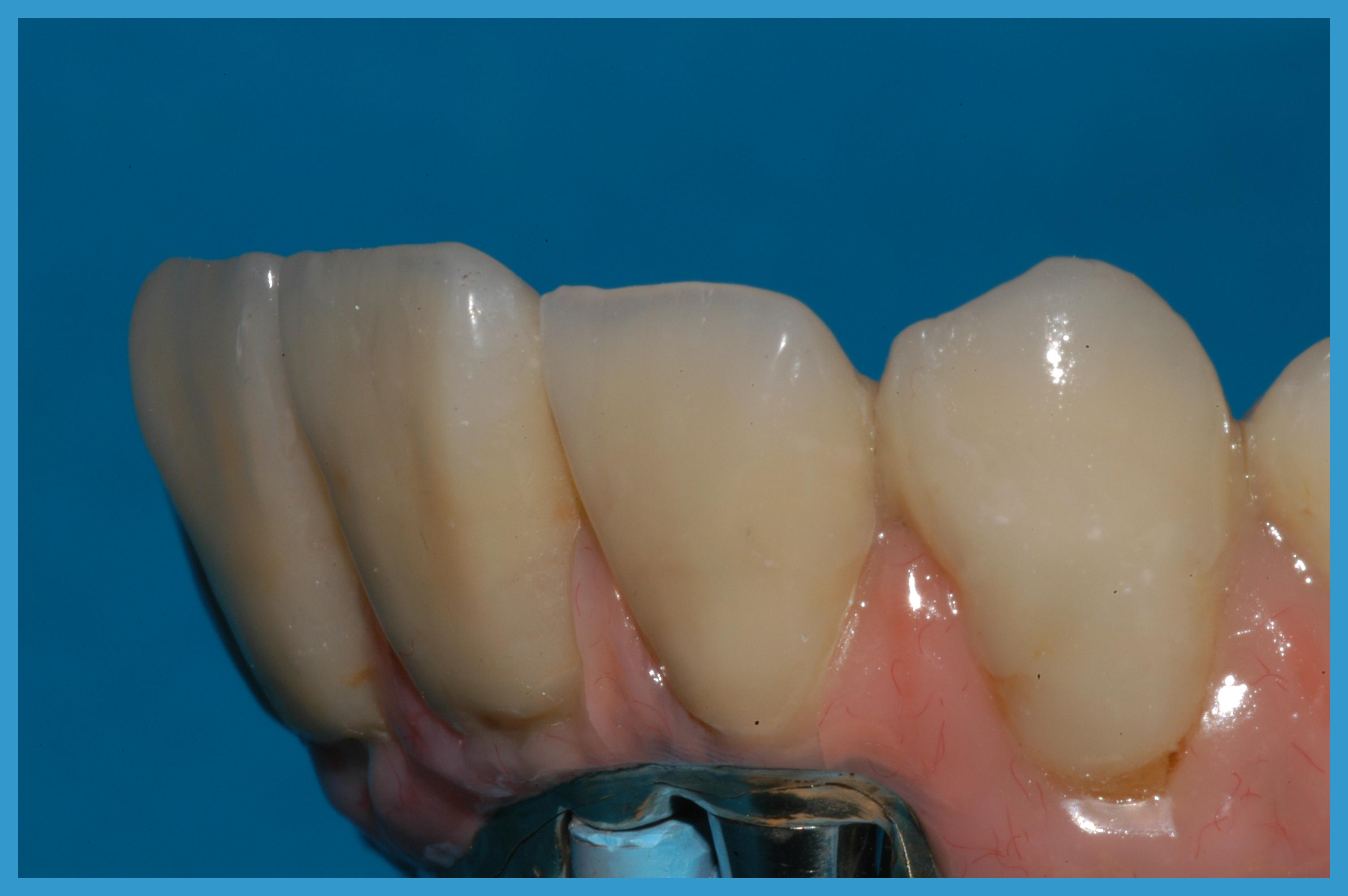 dettaglio denti frontale