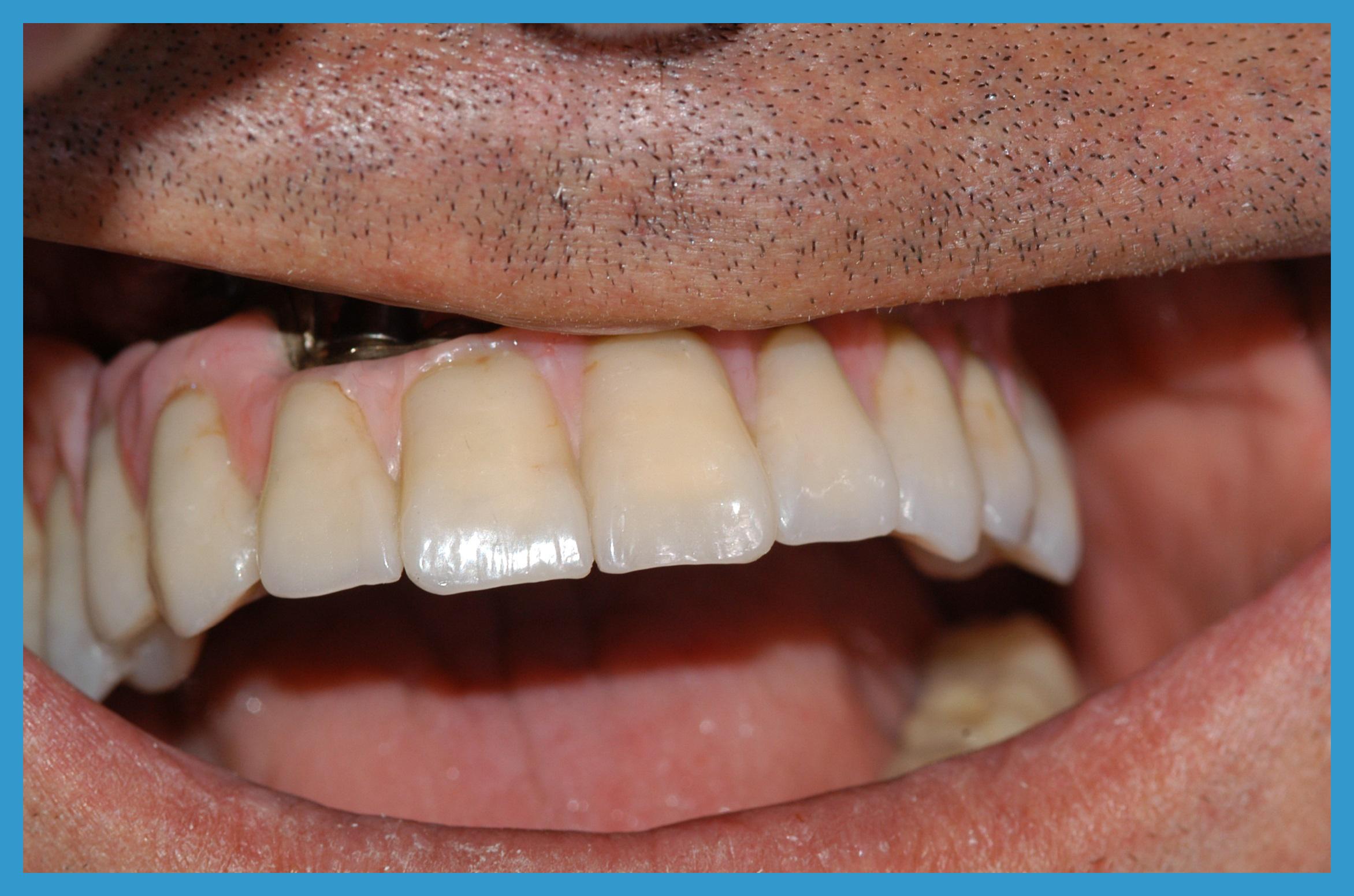 riabilitazine  nel cavo orale