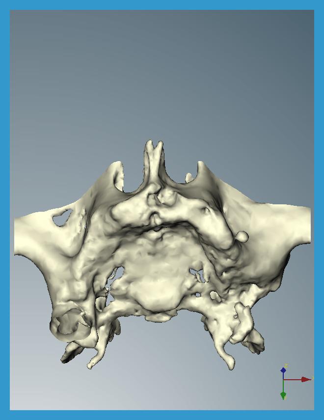 1 dalla tac si ricava il volume della struttuta ossea interessata a ricevere gli impianti