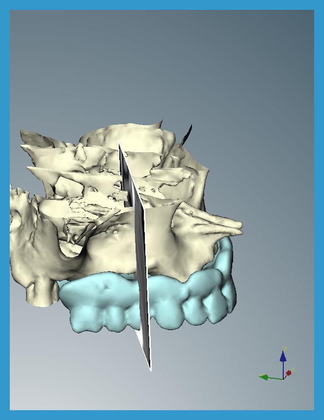 2 si abbina il progetto della riabilitazione protesica alla conformazione del mascellare creando un progetto di insieme in 3D