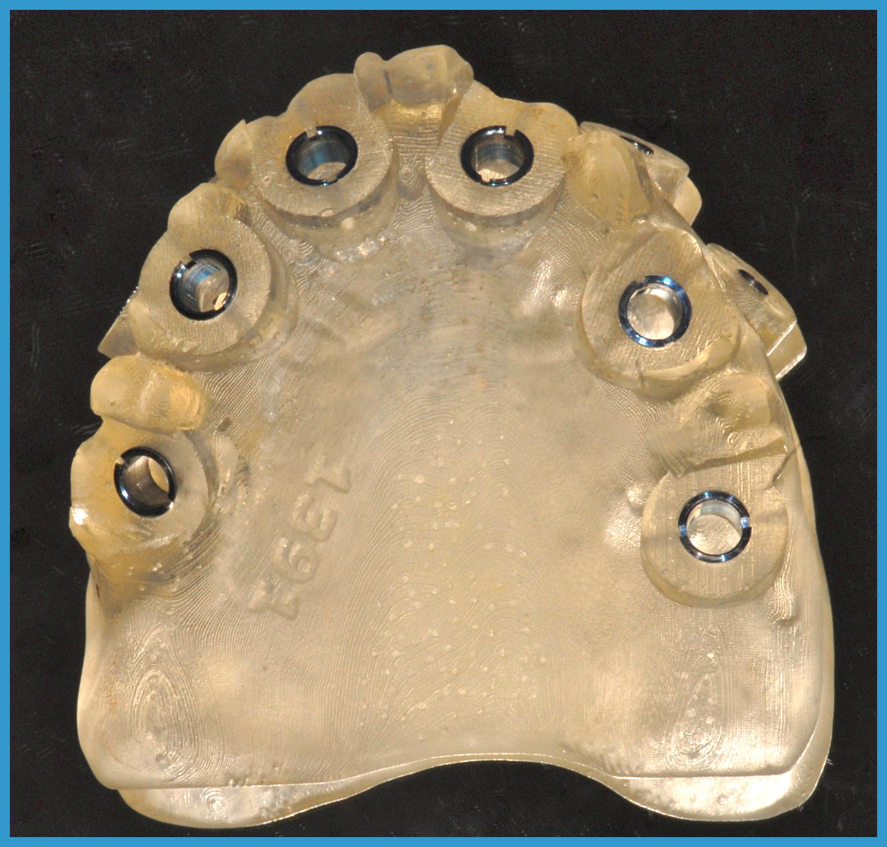 6 risultato finale del progetto Mascherina chirurgica che permette di fare l'intervento senza tagliare la mucosa