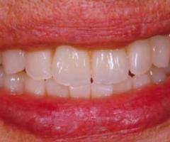 """Implantologia, la tecnica del Centro Poliedro su """"Dental Dialogue"""""""